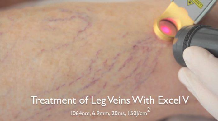 Varices, varículas y arañas vasculares